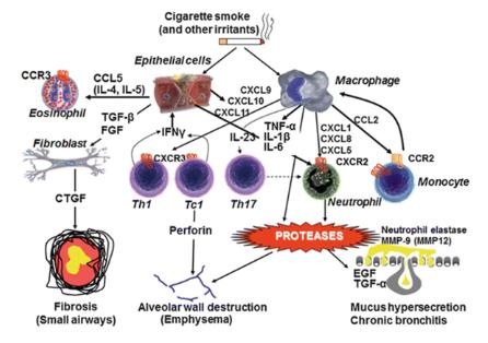 Diagrammatic representation of COPD pathophysiology